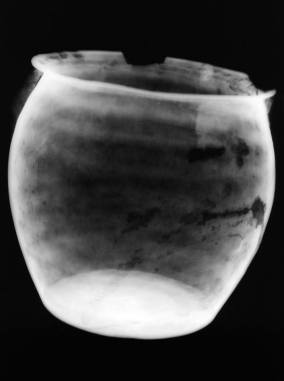 X-ray image of Bronze Situla F showing its condition and the ancient execution technique of hammering (image courtesy of Centro di Restauro, Soprintendenza Archeologica della Toscana)
